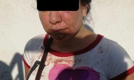 Detienen a dos mujeres por lesiones en riña