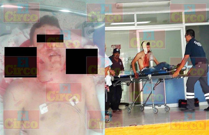 """¡Cae abatido """"El Dailto"""" integrante de una célula criminal responsable de la violencia en Lagos de Moreno!"""