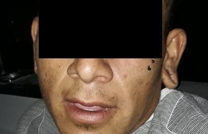 Por robo de bicicleta fue detenido en la zona de las Cachimbas