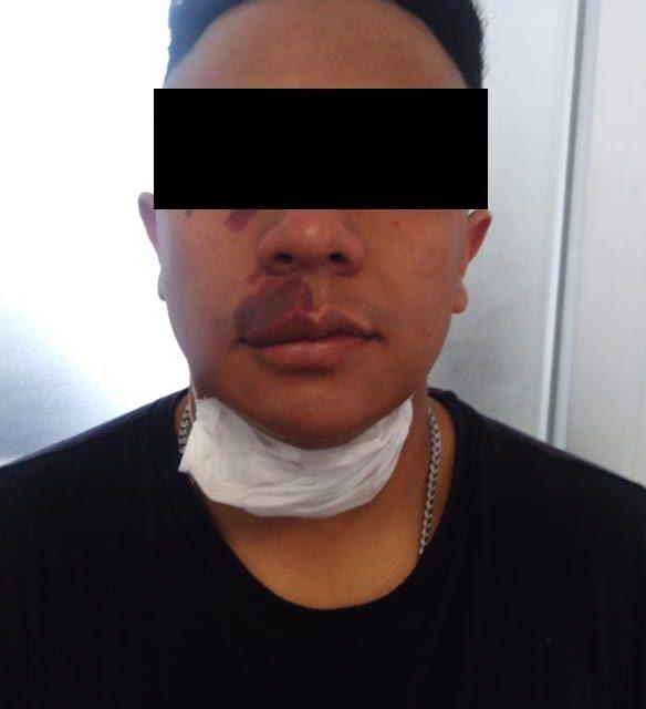 PAR DE PRESUNTOS DISTRIBUIDORES DE DROGA FUERON DETENIDOS EN SAN FRANCISCO DE LOS ROMO