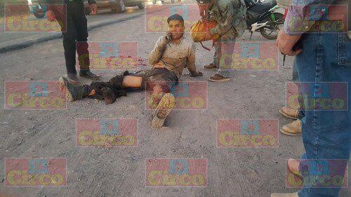 ¡Joven motociclista lesionado tras chocar contra una camioneta en Lagos de Moreno!